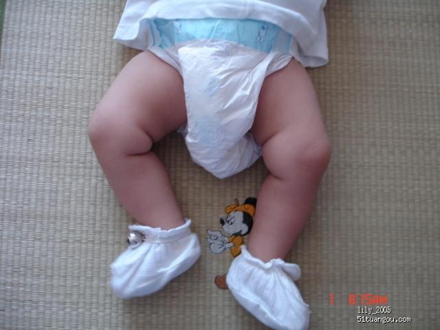 儿童腿 图片