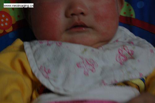湿疹+幼儿急诊+过敏宝宝小心喂养
