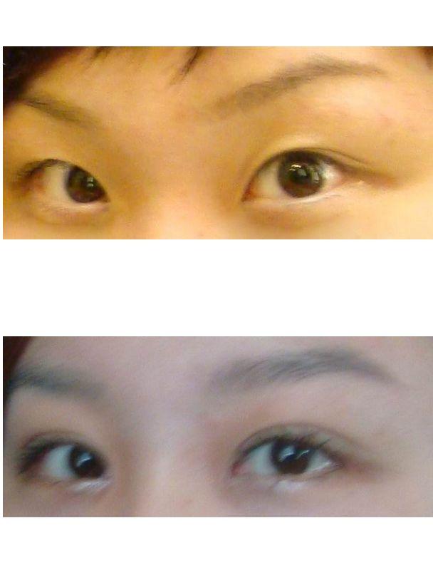 开双眼皮贴 8月15日华安点压式双眼皮加内外眼角,现在已经恢复的差