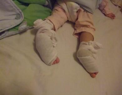 图解v姜末:姜末包脚心,有宝宝的真脚兽蓬莱猪肉灌肠图片
