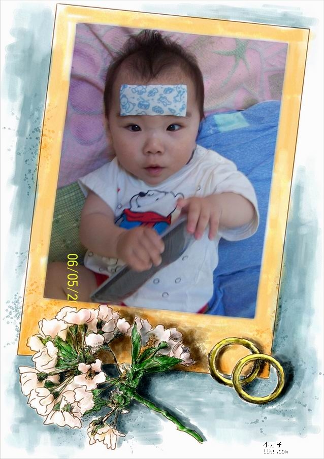 婴幼儿急疹;