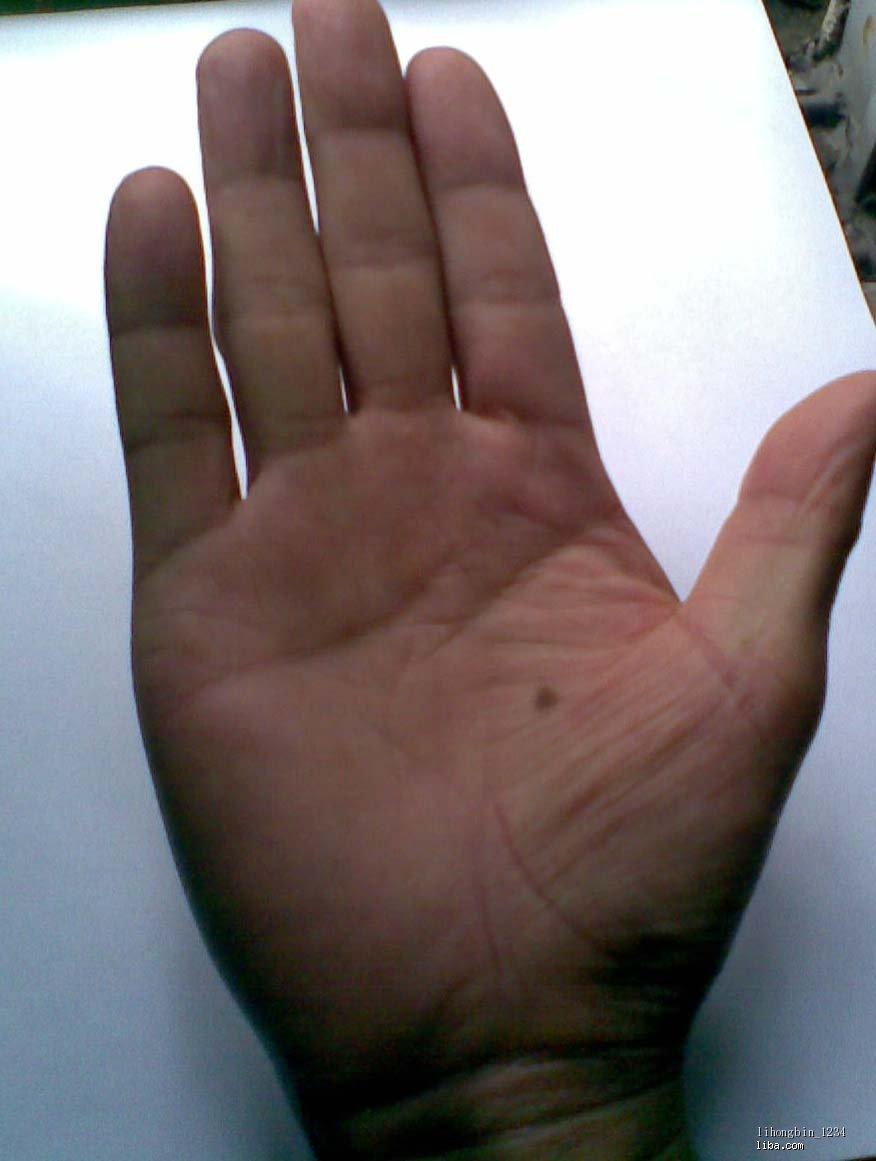 女人左手背有痣; 男人右手心有痣;