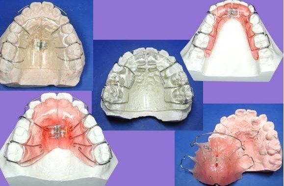 儿童牙齿矫正;;