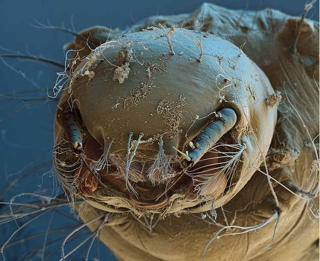 操你妹插插射射_重口味:在你脸上吃喝拉撒插潮射生的螨虫们,试用raycop 瑞卡富除螨仪