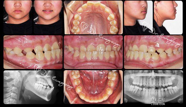 十岁——反颌矫治案例.png