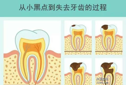 龋齿过程.png