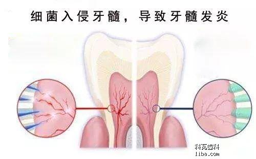 牙髓炎.png